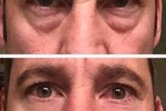 Результат применения крема Instantly Ageless - до и после