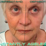 Jeunesse Global's cream effect (before and after)