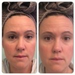 instantly-ageless-for-bags-and-dark-circle-eye-treatments