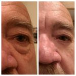 Jeunesse Global's micro-cream anti-eye-bags effect