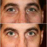 JeunesseGlobal's Instantly Ageless micro-cream anti-eye-bag effect