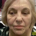 Jeunesse Global micro-cream anti-wrinkle effect