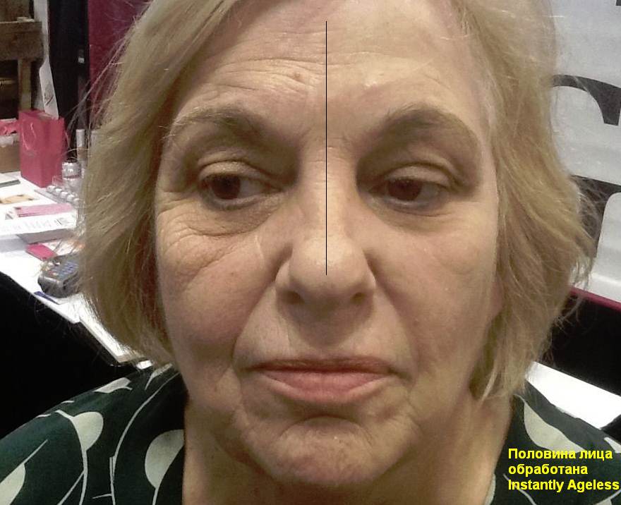 instantly_ageless_before-and-after-picture-half-of-face