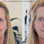 instantly-ageless-before-after
