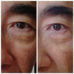 Jeunesse Global's micro-cream anti-wrinkle effect