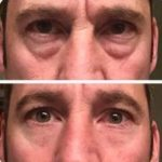 Instantly Ageless cream result - before and after