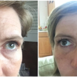 instantly-ageless-before-and-after