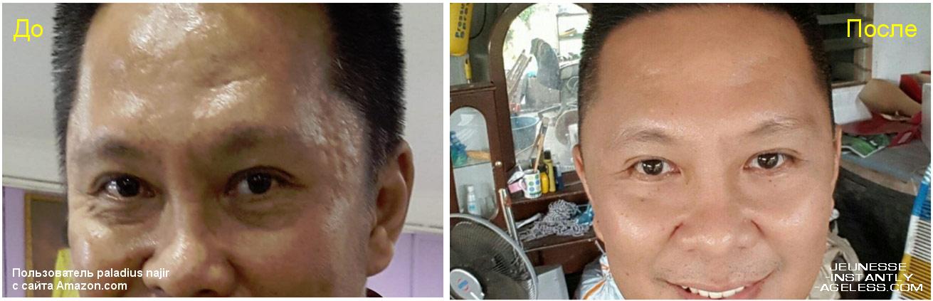 Действие крема Инстантли Агелесс: до и после применения. Мужчина 47 лет. Фото с сайта 4healthresults -- instantly-ageless-before-and-after