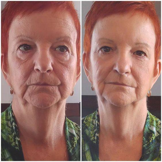 фото-отчёт об использовании Instantly Ageless
