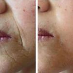 Jeunesse Global's Ageless micro-cream anti-wrinkle effect