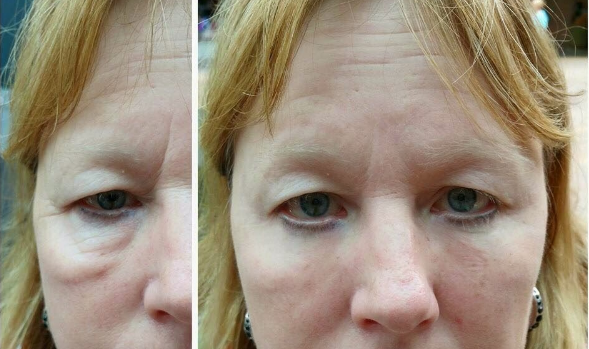 instantly-ageless-photo-before-and-after-2
