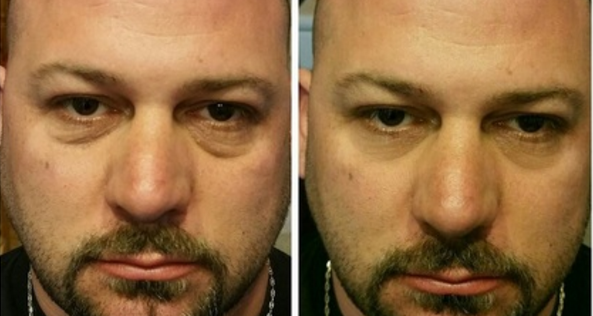 instantly-ageless-photo-before-and-after-3