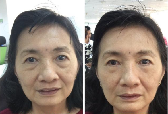instantly-ageless-photo-before-and-after