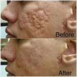 jeunesse-instantly-ageless-acne