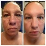 jeunesse-instantly-ageless-acne-effect