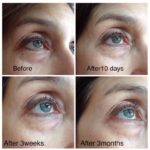 JeunesseGlobal's micro-cream anti-wrinkle effect (90 days of applying)