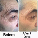jeunesse-instantly-ageless-scars-effect
