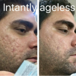 micro-cream-instantly-ageless-result-scars