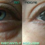 instantly-ageless-before-and-after-dark-circles-and-puffiness