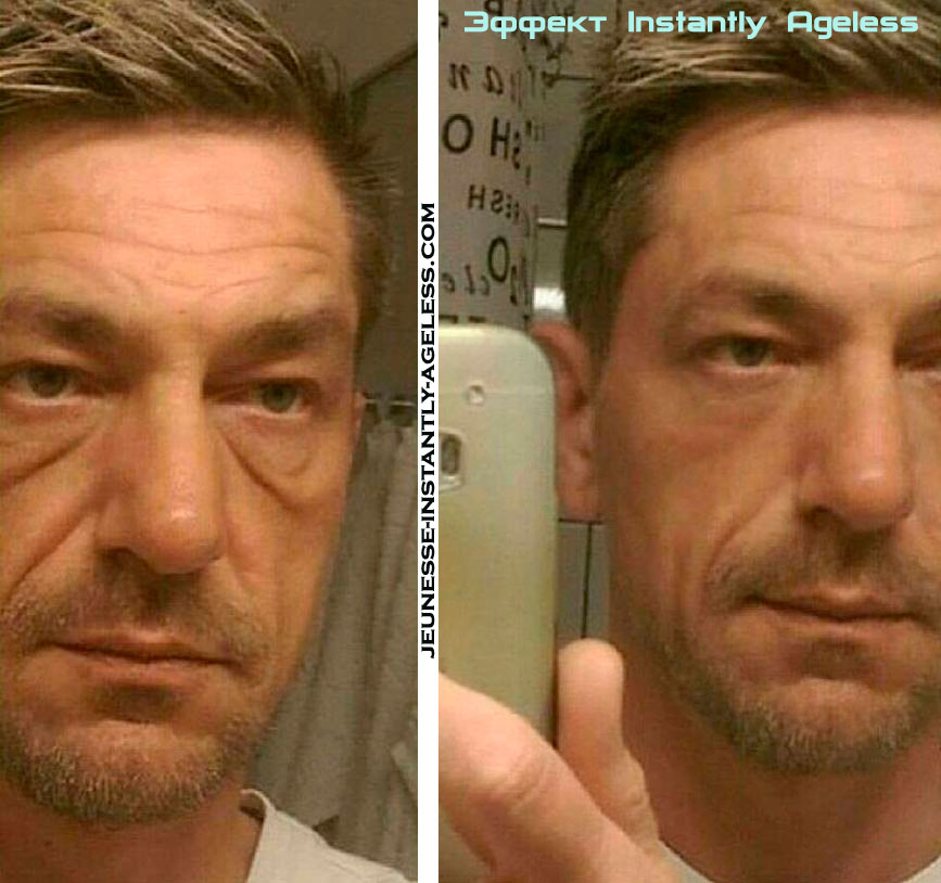 instantly_ageless_before-and-after- man