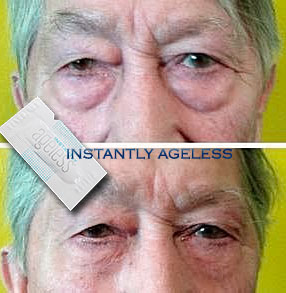 Instantly Ageless puffiness before and after