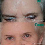 instantly-ageless-effect-woman