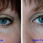 instantly-ageless-effect-woman-eye-wrinkles