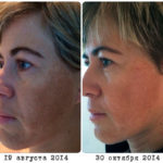 LUMINESCE™ Cellular Rejuvenation Serum - before and after
