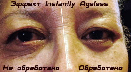 Instantly-Ageless-effect-before-and-after