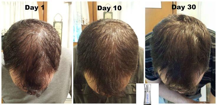 Сыворотка Jeunesse для волос