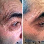 Эффект LUMINESCE Serum от морщин и пигментных пятен - фото до и после