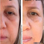Эффект LUMINESCE Serum - фотографии до и после