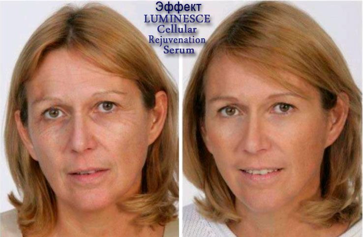 luminesce-before-and-after